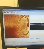 Optical Coherence Tomography (OCT) Spectralis OCT - MedWOW