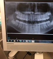 Panoramic Dental X-ray, Digital XP77 CBCT - MedWOW