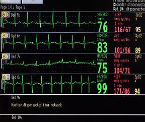 ICU Monitors - MedWOW.com