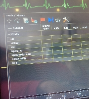 Patient Monitor XPREZZON (91393 CPU94267 Display) - MedWOW